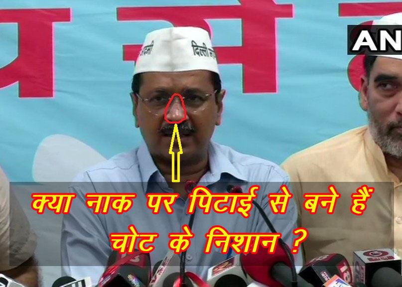 Arvind Kejriwal, Aam Aadmi Party, MLA, AAP MLA, Kejriwal Pitai, Delhi CM, अरविंद केजरीवाल, आम आदमी पार्टी, आप विधायक, AAP विधायक, केजरीवाल पिटाई, दिल्ली मुख्यमंत्री